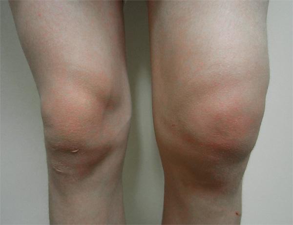 Отек сустава, характерный для вывиха или растяжения - витаминами не лечится.