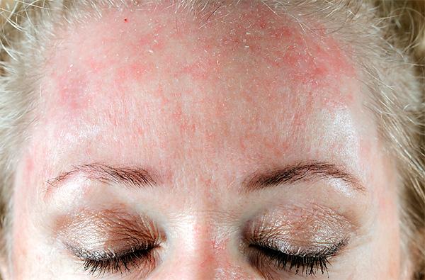 Типичный дерматит, нередко возникающий при гиповитаминозе.