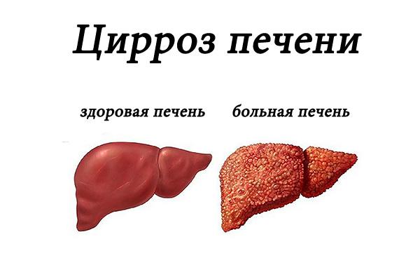 суточная доза витамина а