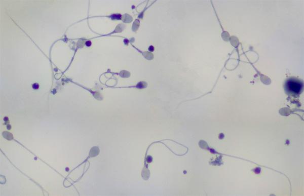Tocopherol sperm