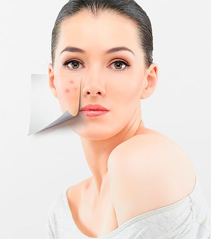 Далеко не всегда витамин Е способен избавить от прыщей на коже